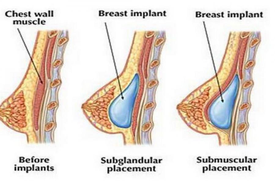 عملية تكبير الثدي تجعل انوثتك مكتملة